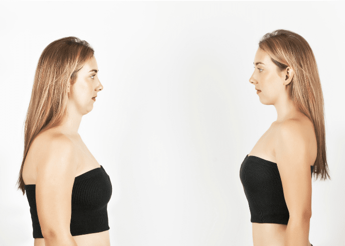 how to lose fat on face